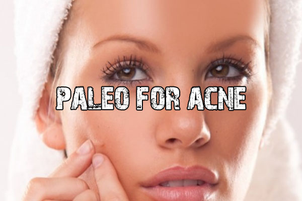 Paleo For Acne